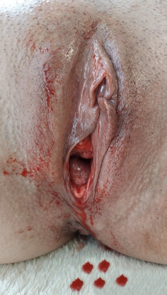 Porno Bilder - Blutige Pussy Masturbation speriode Menstruation